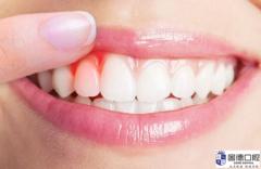东莞洗牙:怎么预防和去除