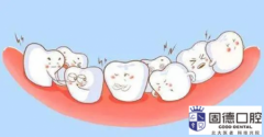 口腔医院牙科:儿童口腔常