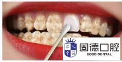 引起牙齿变色的原因有哪些