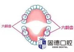 东莞口腔医院牙科:六龄牙