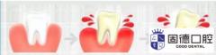 东莞口腔医院:用力吸牙龈
