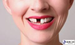 东莞牙科医院:缺牙的危害及影响