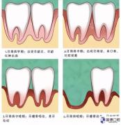 东莞牙周病治疗:怎么判断