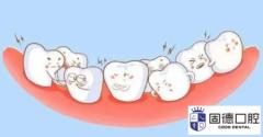 东莞儿童口腔医院:儿童口