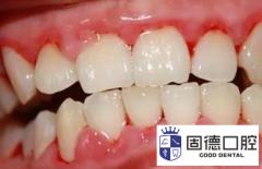 东莞牙科医院:牙周炎程度