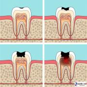 东莞牙科医院:蛀牙制止方