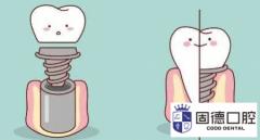 东莞南城口腔医院:关于牙冠修复