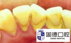 长安牙科医院:牙齿问题的