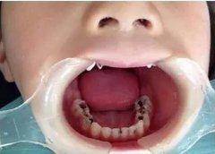 东莞儿童口腔医院:乳牙牙