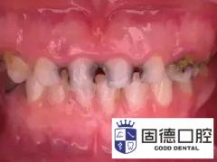 东莞东城牙科医院:儿童窝