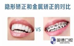 东莞牙齿矫正:隐形矫牙好还是传