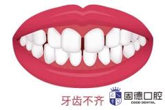 东莞儿童牙齿矫正:为什么