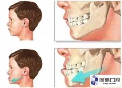 东莞大朗口腔医院:儿牙畸