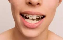 东莞大朗口腔医院:牙齿矫