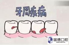东莞清溪口腔医院:牙周炎