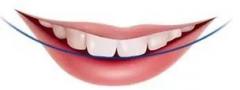 东莞矫正龅牙多少钱?