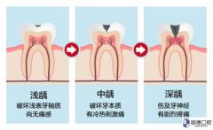 东莞口腔医院:觉得看牙贵