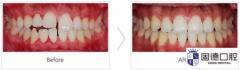 东莞牙科医院:牙缝越来越