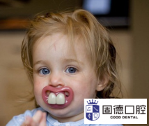东莞儿童牙科医院:儿童牙