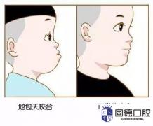 东莞儿童口腔医院:儿童地