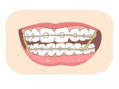 东莞道滘牙齿矫正:想做牙齿矫正