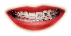 东莞沙田口腔医院:牙齿矫正期间