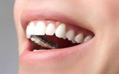 东莞沙田牙齿矫正:牙颌畸形(地