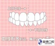 东莞高埗牙齿矫正:脸歪、