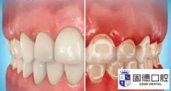 谢岗口腔医院:牙齿上的白色斑块