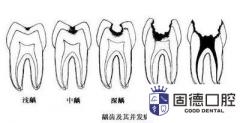 """东莞虫牙治疗:""""虫牙"""","""