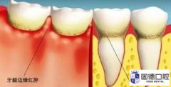东莞高埗牙龈萎缩治疗:牙