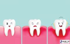年纪轻轻牙齿就开始牙齿松