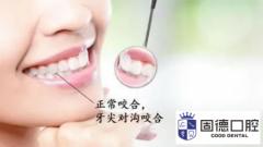 东莞谢岗牙齿矫正:标准的