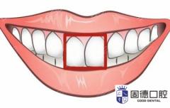 门牙不齐不想矫正牙齿能做美容冠