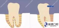 东莞桥头牙齿矫正:戴牙套