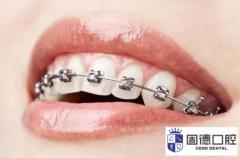 东莞石排牙齿矫正:牙齿矫