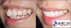 东莞莞城牙齿矫正:25岁以