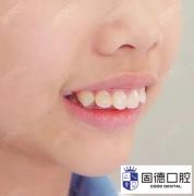 东莞中堂龅牙矫正:怎么判断龅牙