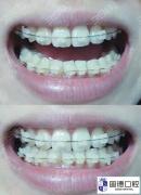 道滘牙齿矫正:如何选择牙