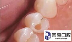 东莞麻涌补牙:补牙材料掉