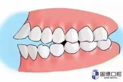 前牙开颌危害及前牙开颌矫正方法