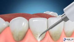 龈下结石:牙结石为什么会