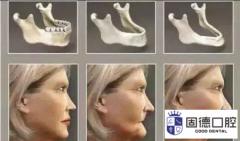 石排种植牙:缺牙会加快人的衰老