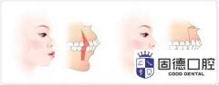 东坑牙齿矫正:牙齿矫正的好处都