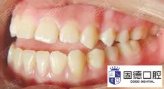 桥头牙齿矫正:牙齿矫正后为什么