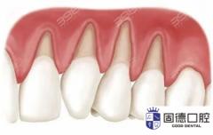 东莞牙龈移植:牙龈移植术