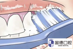 东莞麻涌洗牙:哪种洗牙方