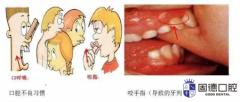 石龙牙齿矫正:脸型真的会