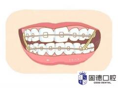 莞城牙齿矫正:不同年龄阶