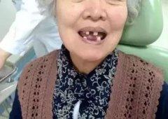 中老年缺牙的危害都有哪些?